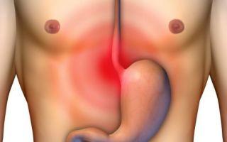 Острая и резкая боль в желудке приступами- первая помощь