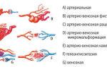 Исследование кишечника: основные методы диагностики заболеваний кишечника