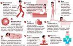 Восстановление микрофлоры кишечника: препараты и продукты после антибиотиков