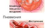 Боль в левом подреберье при вдохе: причины и лечение