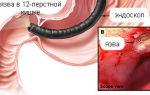 Признаки и симптомы язвы 12 перстной кишки у женщин и мужчин