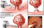 Полипы в желудке: симптомы, причины, диагностика и лечение