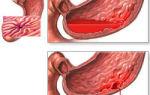 Разрыв желудка: причины, симптомы, диагностика и лечение
