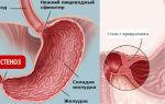 Стеноз привратника желудка — симптомы и лечение, что это такое