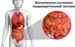 Медикаментозное и народное лечение язвы желудка и двенадцатиперстной кишки