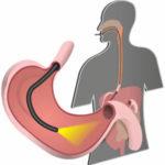 ФГДС и ФГС желудка с биопсией - подготовка и как делают