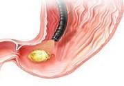 Прободение язвы желудка: симптомы, причины, лечение, операция