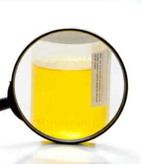 Моча желтого цвета