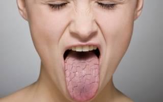 Сладкий привкус во рту: причины у женщин и мужчин и лечение сладкой слюны