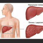 Как болит печень: симптомы у мужчин - основные признаки