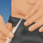 Гастропарез симптомы, лечение, диета. Гастропарез при сахарном диабете