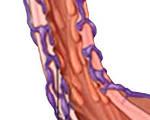 Варикозное расширение вен пищевода и желудка: причины, симптомы и лечение