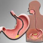 Гиперпластический и гиперплазиогенный полип желудка, симптомы и лечение