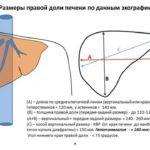 Нормальные размеры печени по УЗИ у взрослых женщин и мужчин