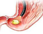 Язвенная болезнь желудка код по МКБ 10 - перфоративная язва